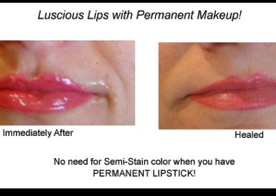 Skin Rejuventation/Microneedling